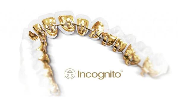Incognito (tm) Braces